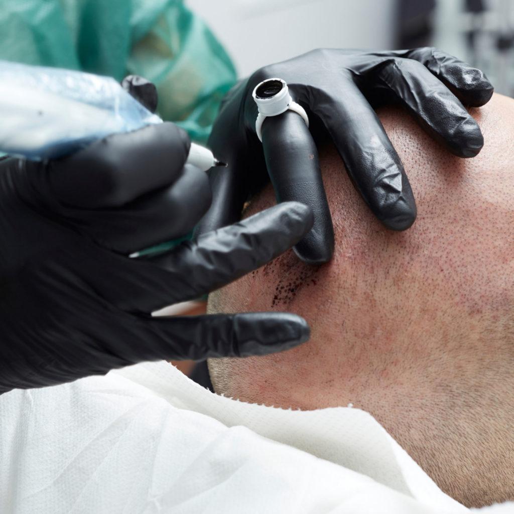Dermopigmentation cuir chevelu au pradet